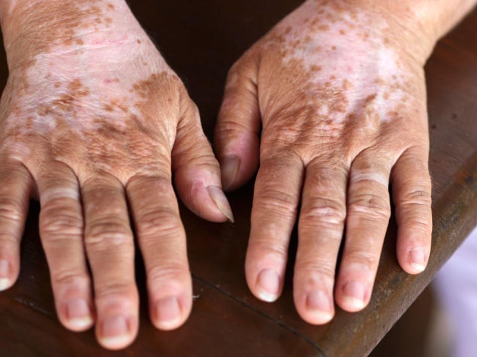 Vitiligo, padecimiento de la  piel que afecta más a jóvenes